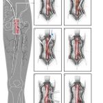 Surgical illustration femoral endarterectomy by Jenny Smith