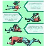 Patient positioning by Jenny Smith