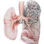 Pathological especimen in watercolour Emphysema by Maria Socias