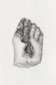 Gangrenous foot by Becki Hiscocks