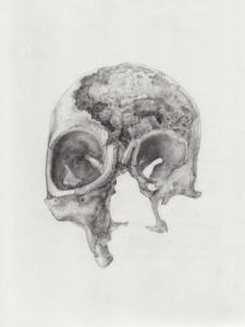 Skull with advanced syphilis by Becki Hiscocks