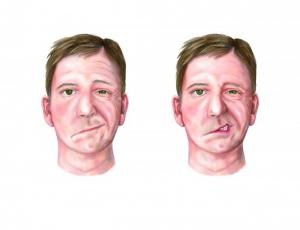 facial palsy clin appearance in photoshop by Julia Ruston